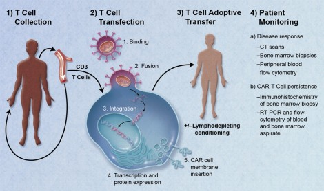 CAR-Engineered_T-Cell_Adoptive_Transfer